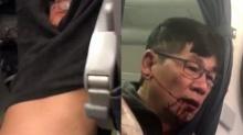 สายการบินสุดห่วย! คุณหมอโดนเจ้าหน้าที่ซ้อม เลือดสาด!