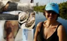 สาวใหญ่ต้องเข้ารพ. หลังกินหอยนางรมเข้าไป 24 ตัว สุดท้ายทนทรมานนาน 21 วัน ก่อนจะเสียชีวิต? (มีคลิป)