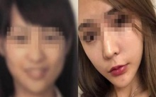 สาววัย 28 ปี ตกเครื่อง! เหตุศัลยกรรมจนหน้าเปลี่ยนไม่เหมือนบัตรประชาชน-สแกนใบหน้าไม่ได้