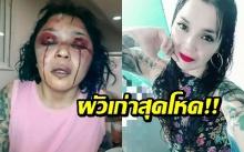 แฟนเก่าสุดโหด! สาวโดนฟาดด้วยท่อเหล็ก จนร้องไห้ออกมาเป็นเลือด!!
