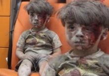 หดหู่!!เด็กซีเรียถูกระเบิด ใบหน้าอาบเลือด นั่งรอการช่วยเหลือด้วยความเศร้า