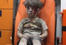 เปิดภาพล่าสุด 'ออมราน' หนูน้อยเหยื่อระเบิดซีเรีย ปัจจุบันเป็นแบบนี้ไปแล้ว