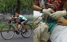 หนุ่มวัย 14 ขี่จักรยาน นั่งทับอัณฑะตัวเอง!! ทำหมออึ้งทั้ง รพ. เมื่อเปิดออกมาเห็นสภาพแบบนี้?
