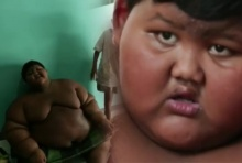 หมอสั่งเด็กชาย 188 กก. ลดน้ำหนักด่วน เพราะอ้วนเขาถึงเป็นแบบนี้