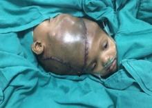 ทีมแพทย์อินเดีย40คน ผ่าตัดกว่า36ชม. แยกเด็กแฝดหัวติดกัน และนี่คือผลผ่าตัด