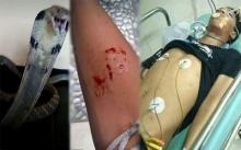เด็กหนุ่มวัย 14 โพสต์รูปถูกงูเห่ากัด หวังให้เพื่อนมาช่วย แต่สายเกินไป..?