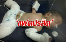 สยอง!! 'แฝดปรสิต' ฝังตัวในท้องทารกแรกเกิด พบอวัยวะเกือบครบสมบูรณ์!