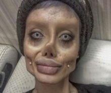 เงิบทั่วโลก!! สาวอิหร่าน รับแล้ว โกหกศัลยกรรมหน้า50หนเลียนแบบ'โจลี่'