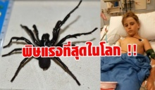 หวิดดับ !! เด็กชายออสซี่ เจอแมงมุมพิษร้ายแรงที่สุดในโลกกัด ได้ยาต้านทัน