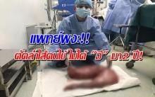 ผงะ!! แพทย์ตัดลำไส้คนไข้ ไม่ได้ อึ มา2 ปี หนัก 13 กก.?!!