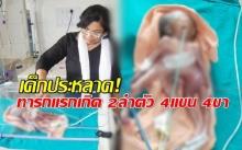 เด็กประหลาด! ทารกแรกเกิด 2 ลำตัว 4 แขน 4 ขา แพทย์ชี้เป็นโรคหายาก! (คลิป)