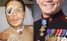 หนุ่มใช้ลำตัวบังระเบิดช่วยเพื่อน บาดเจ็บเจียนตาย ทุกคนคิดว่าคงไม่รอด ผ่านไป 5 ปี เขาเปลี่ยนไปเป็นแบบนี้?