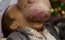 เด็กชายป่วยเนื้องอกยักษ์เต็มใบหน้า หากปล่อยอาจคอหักตายได้!! (มีคลิป)