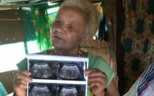 ยายวัย 70 โชว์ผลอัลตราซาวด์ ท้องได้ 6 เดือนแล้ว ทำเอาหมอถึงกับอึ้ง!! (มีคลิป)