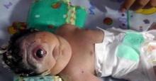 พ่อแม่สุดเศร้า!! ลูกเกิดมาพิการ ตาเดียว-ไม่มีจมูก ลืมตาดูโลกได้เพียง 7 ชั่วโมง (มีคลิป)