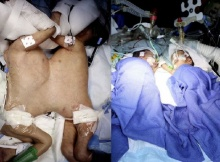 สุดเจ๋ง!! หมอสวิสผ่าแยกแฝดสยามอายุน้อยที่สุดในโลกได้สำเร็จ