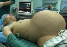 หมอยังทึ่ง!!เนื้องอกชิ้นยักษ์หนัก15กก. อยู่ในท้องหนุ่มวัย33