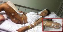 สยองทั้งโรงบาล !!! สาวสวยไปหาหมอเพราะ เจ็บขา แต่พอรู้ สาเหตุ ที่แท้จริงเท่านั้นแหละ ทำเอาผวาหนัก!!