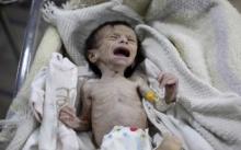 ภาพสลดสะเทือนใจ..ทารกในสมรภูมิซีเรียผอมแกรน สะท้อนภาวะขาดสารอาหาร