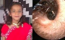 สาวน้อยวัย 12 ปี มีมดคลานออกมาจากหูมากถึง 1,000 ตัว ทุกวัน!! แถมคีบเท่าไหร่ก็ไม่หมด (มีคลิป)