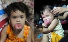 หนูน้อย 2 ขวบ เหลือเวลาอีกไม่มาก เมื่อลิ้นของเธอใหญ่ล้นจนใกล้จะทำให้เธอขาดอากาศหายใจ!!