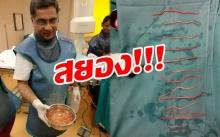 สยอง!! สาวไปโรงพยาบาลเพราะปวดท้องจนยืนไม่ไหว-มีไข้ หมอผ่าท้องถึงกับตะลึง พยาธิเต็มท้อง!!