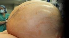 ระดมทีมหมอผ่าเนื้องอกรังไข่ขนาดมหึมา-หนักเกือบ 60 กิโลกรัม