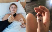 หญิงสาวกัดเล็บมือจนเกลี้ยง ลุกลามจนกลายเป็นมะเร็งผิวหนัง สุดท้ายต้องตัดนิ้วโป้งทิ้ง!!