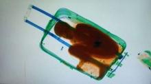 ทำไปได้! ตม.สเปนผงะ เอกซเรย์กระเป๋าเดินทาง เจอเด็กชายซ่อนอยู่ข้างใน