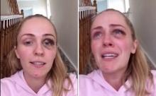 สาวโพสต์คลิประบายทั้งน้ำตา ถูกแฟนชกตาบวม-หลังจับได้ว่าแอบมีกิ๊ก!!