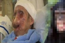 แม่บ้านเคราะห์ร้ายโดนทำร้ายร่างกายพิการทั้งใบหน้า สุดช็อกเมื่อผู้ร้ายเป็น...