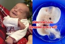 ทารกน้อยคนนี้เกิดจากตัวอ่อนที่ถูกแช่แข็งไว้นานกว่า 24 ปี!