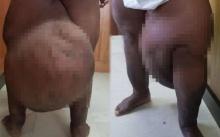หนุ่มเคราะห์ร้าย ถูกยุงกัด จากเป็นตุ่มเท่าเม็ดถั่ว ลุกลามเป็นก้อนเนื้อใหญ่มหึมา!!