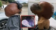 ชายหนุ่มป่วยประหลาด เนื้องอกขนาดยักษ์โผล่ขึ้นจากคอ หนักเกือบ 15 ก.ก.